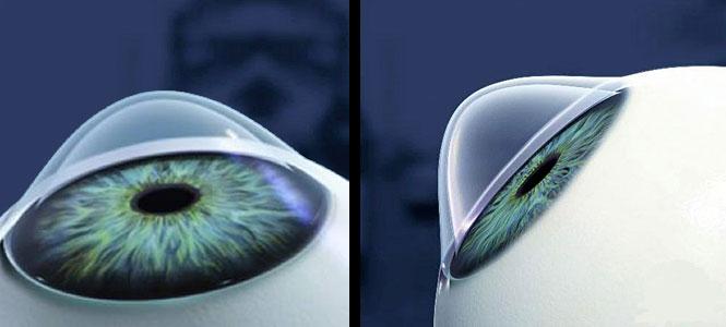 Augenkrankheiten Keratokonus – Diagnose Hornhautkrümmung