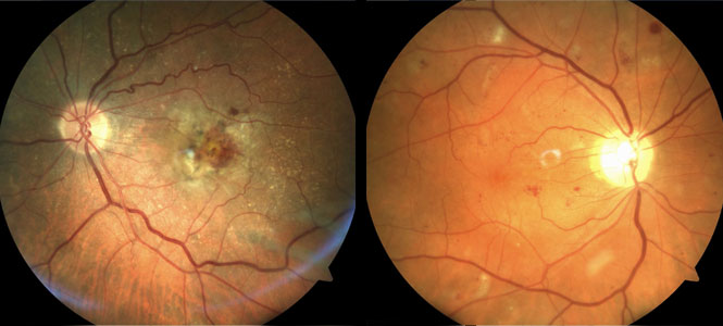 Augenkrankheit Makuladegenration – Diagnose gelber Fleck