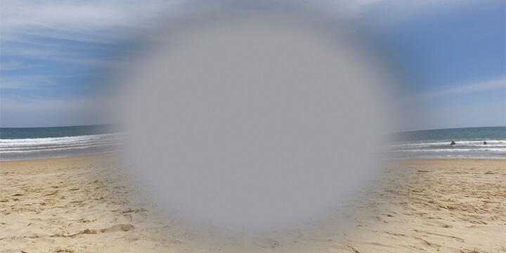 Makuladegeneration Strand grauer Fleck im Sichtfeld